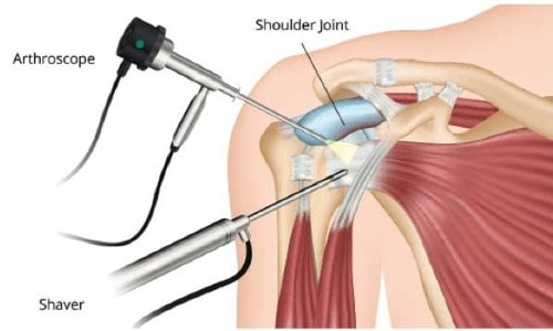Shoulder Arthroscopy: Questions to Ask Before Surgery