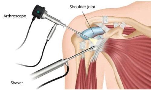 Shoulder Arthroscopy Surgery Questions
