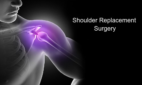 3  Novel Tips You Never Knew Could Help With Total Shoulder Replacement Recovery