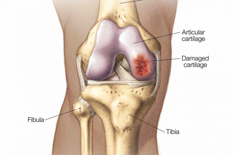 Cartilage Repair Surgery in Bangalore   Cartilage Repair Treatment