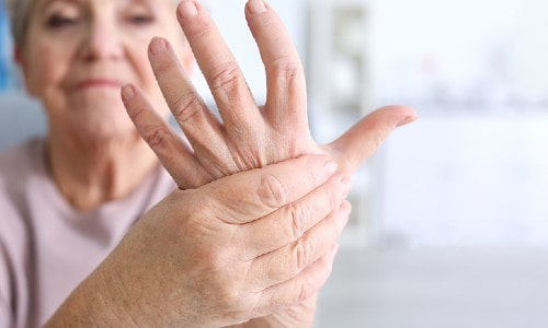 How to stay away from the pain of Rheumatoid Arthritis