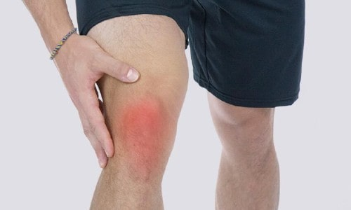 Knee Bursitis causes, symptoms and treatment