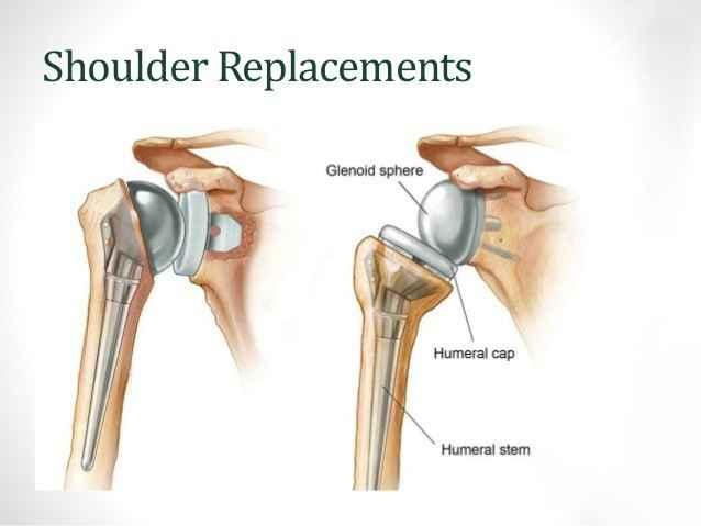 Shoulder Replacement Surgeries